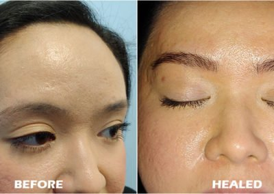 eyebrow mircoblading before and healed by Tayler Hager